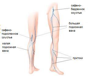 Как жить с варикозом на ногах