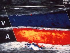 Ультразвуковое ангиосканирование вен (дуплексное сканирование)