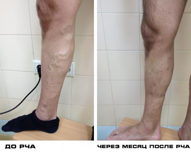 Лечение трофической язвы в Центре Инновационной Флебологии