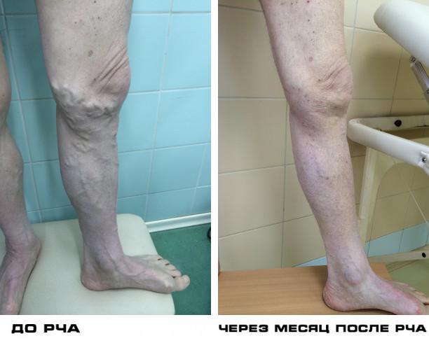 Лечение варикоза в москве