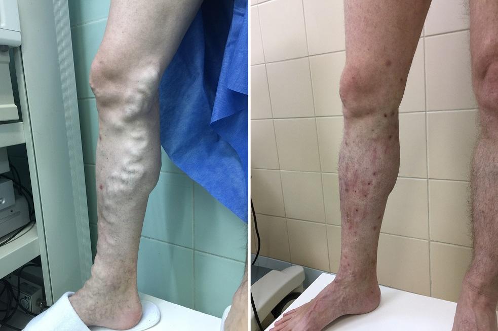 Лазерное лечение варикоза в чебоксарах